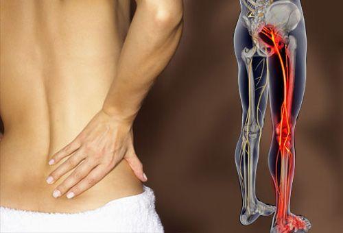 fibromyalgia ízületi fájdalom ízületi kezelés a módszer szerint