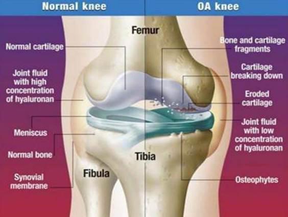 a térd artrózisával járó duzzanat nem szűnik meg