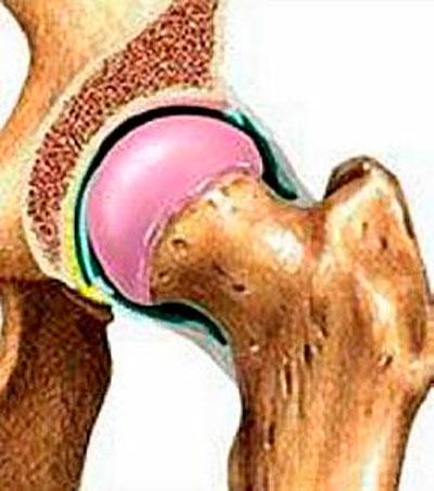 A hatástalan farmakoterápia kiváltása krónikus prostatitis esetén