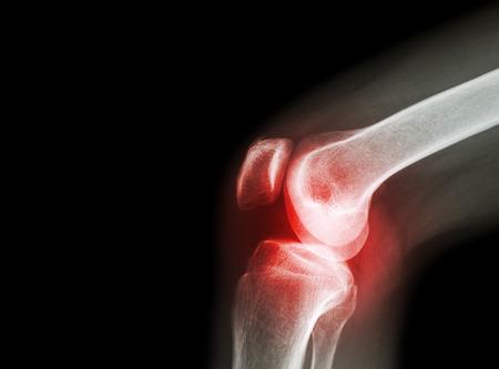 köszörülés térd artrózissal