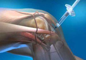 arthrosis. ízületi kezelés