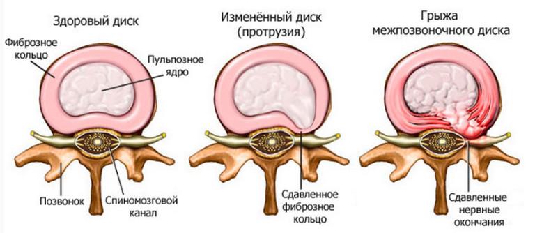 kenőcsöt a kapocs osteochondrozisához