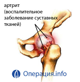 1. szakasz a jobb csípőízület deformáló artrózisa