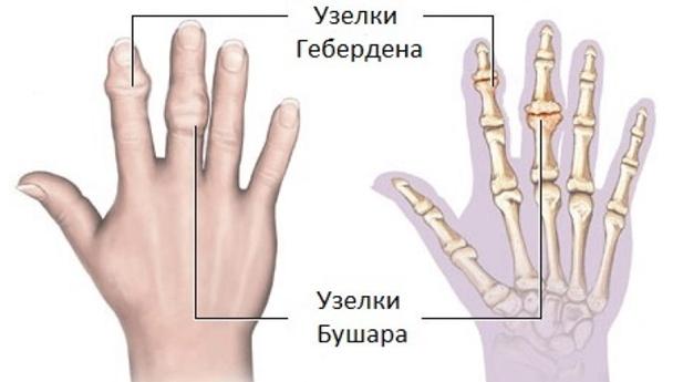 az ujjak ízületeinek artrózisa kenőcskezelés