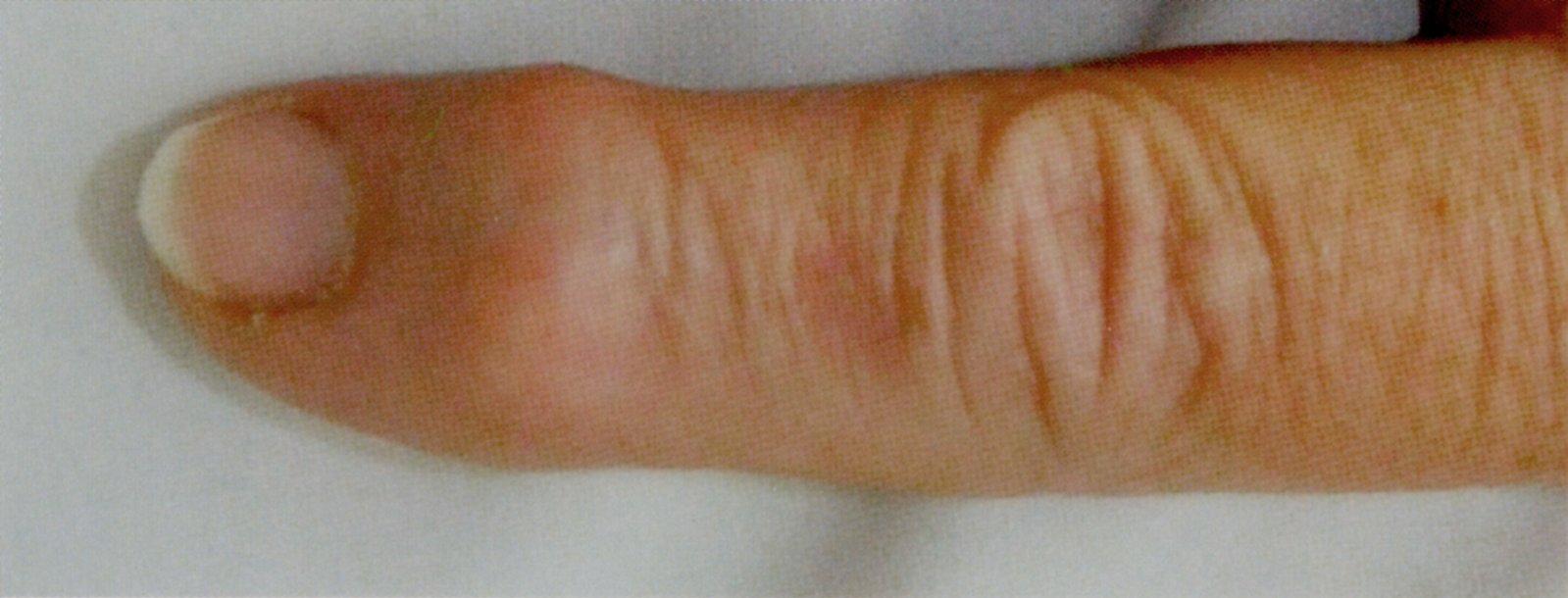 a temporális lebeny osteoarthritis)