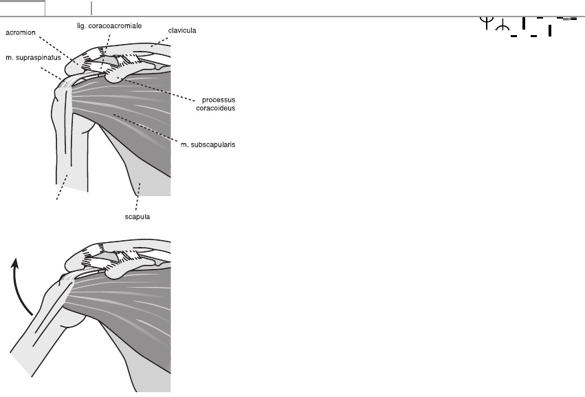 térdízület deformáló artrózisa és kezelése
