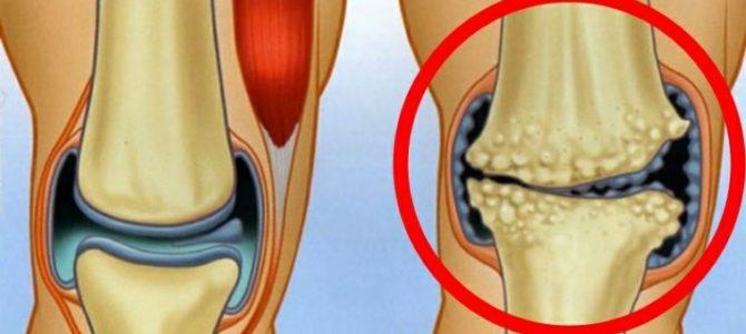 diagnosztizált térd artrózisban)