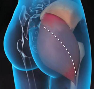 hogyan lehet meghatározni, mi a fáj a csípőízület