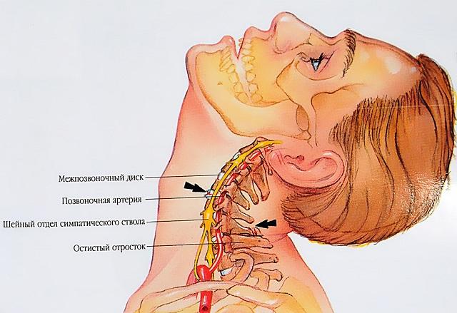 Izomhúzódás 3 oka, 8 fajtája, 9 tünete és kezelése [teljes leírás] - 27 Sellő