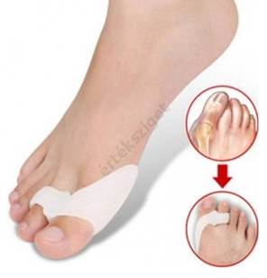 éles fájdalom a lábujj ízületében