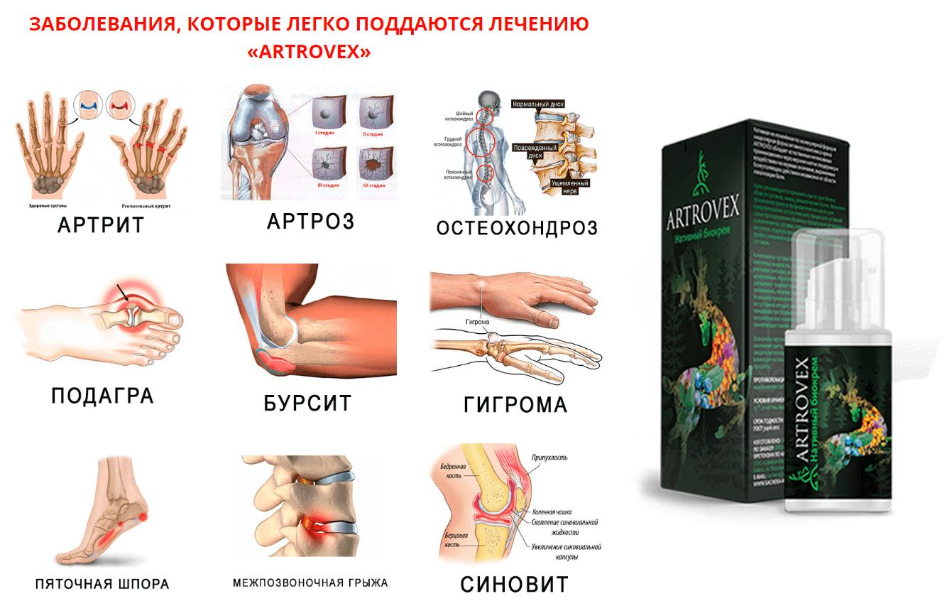 ízületi kezelés öv)