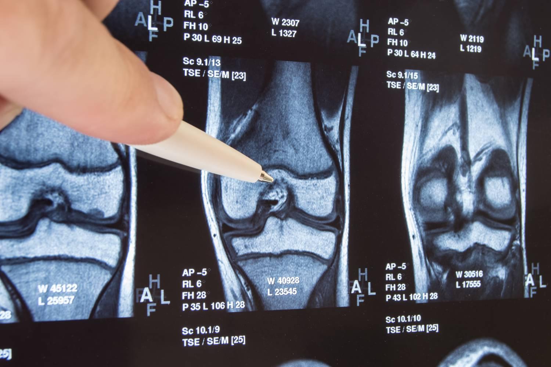artrózis artritisz vállízület kezelés hogyan kezeljük a térd gonartrózist ödémával