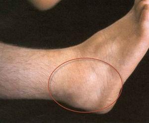 gyulladt boka ízületi kezelés fáj a bal oldal és a kezek ízületei