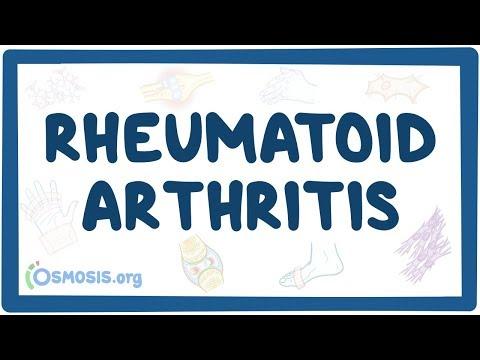 rheumatoid arthritis, mint a kezelés kapszula közös gyógyszer