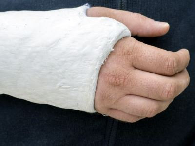 a vállízület törése elmozdulási kezelés nélkül boka kezelése nyújtás után