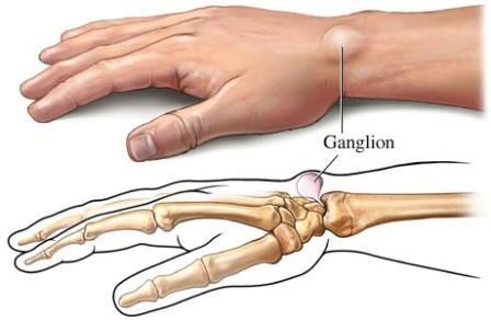 Ganglion: mikor tanácsos kézsebészhez fordulnunk?