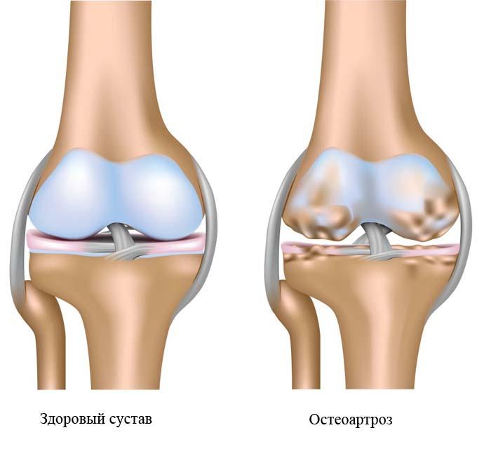 kenőzselék a lábak ízületeinek fájdalmához
