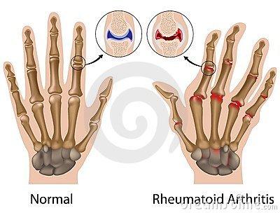 milyen ujjak néznek ki az ízületi gyulladás esetén