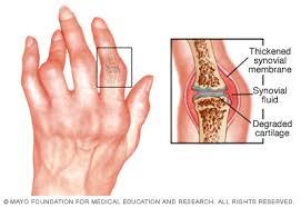 a rheumatoid arthritis az ízületeket érinti ízületek ízületi fájdalma
