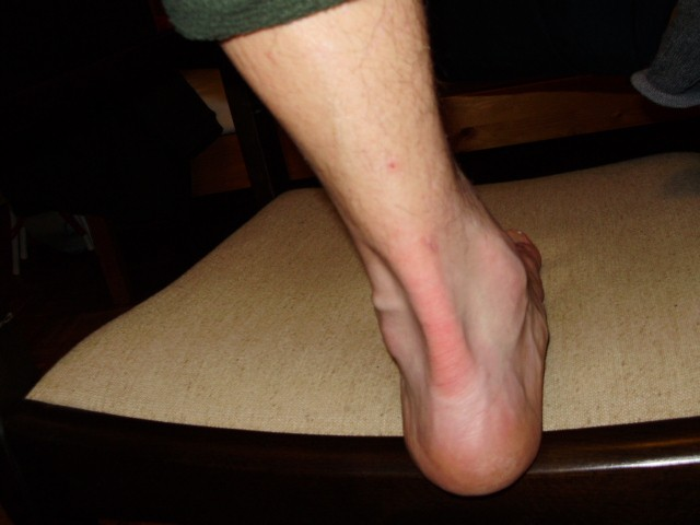 milyen betegség a csípőízület artrózisa