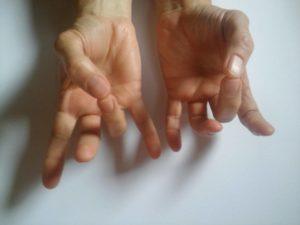 fájdalom a kéz kisujja ízületében)