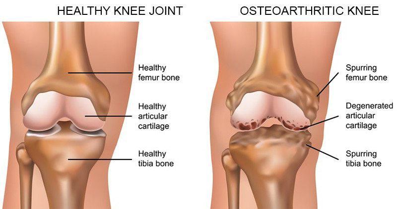 sprain csípő sérülés