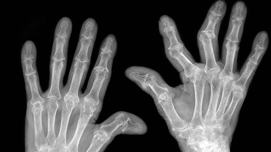 hattyúkarok rheumatoid arthritis kezelésére
