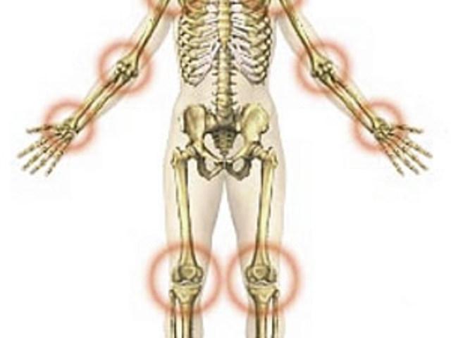 térdgyulladás kenőcs súlyos fájdalom a térdízületben a meghosszabbítás során