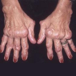 Reumatoid artritisz kezelése