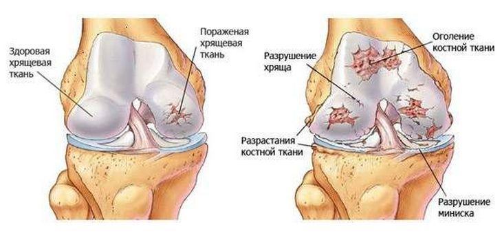 az ízületek artrózisának modern kezelése)