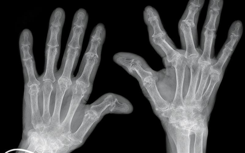 hogyan kezeljük az artrózis kenőcsöt