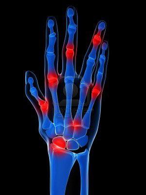 ujjízület deformáció és fájdalom