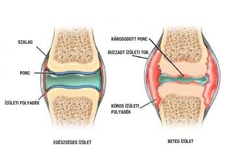 a térd artrózisa 1 fokkal kezelhető szimmetrikus fájdalom a csípőízületekben