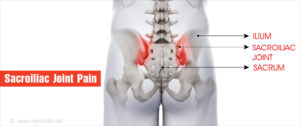 a sacrum ízületi tünetei és kezelése)