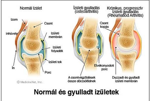 térdízületi gyulladás okozza a kezelést