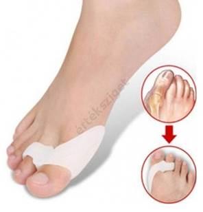 nagy lábujj ízületi kezelés