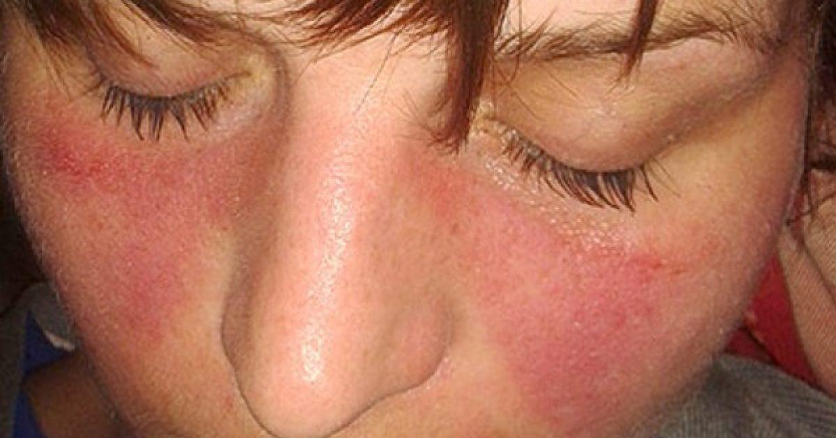 a kötőszövet szisztémás betegségei közé tartozik az ujjak artrózisának kezelése gyógyszer