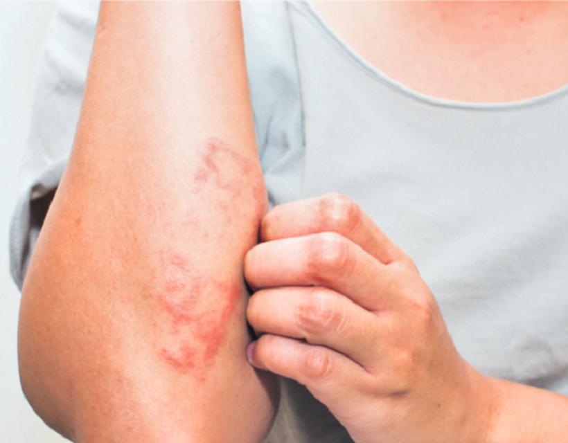 Ezek a bokafájdalom leggyakoribb okai