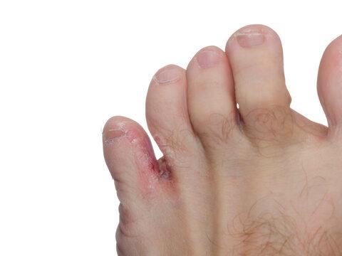 A lábujjak arthritise - Bőrgyulladás