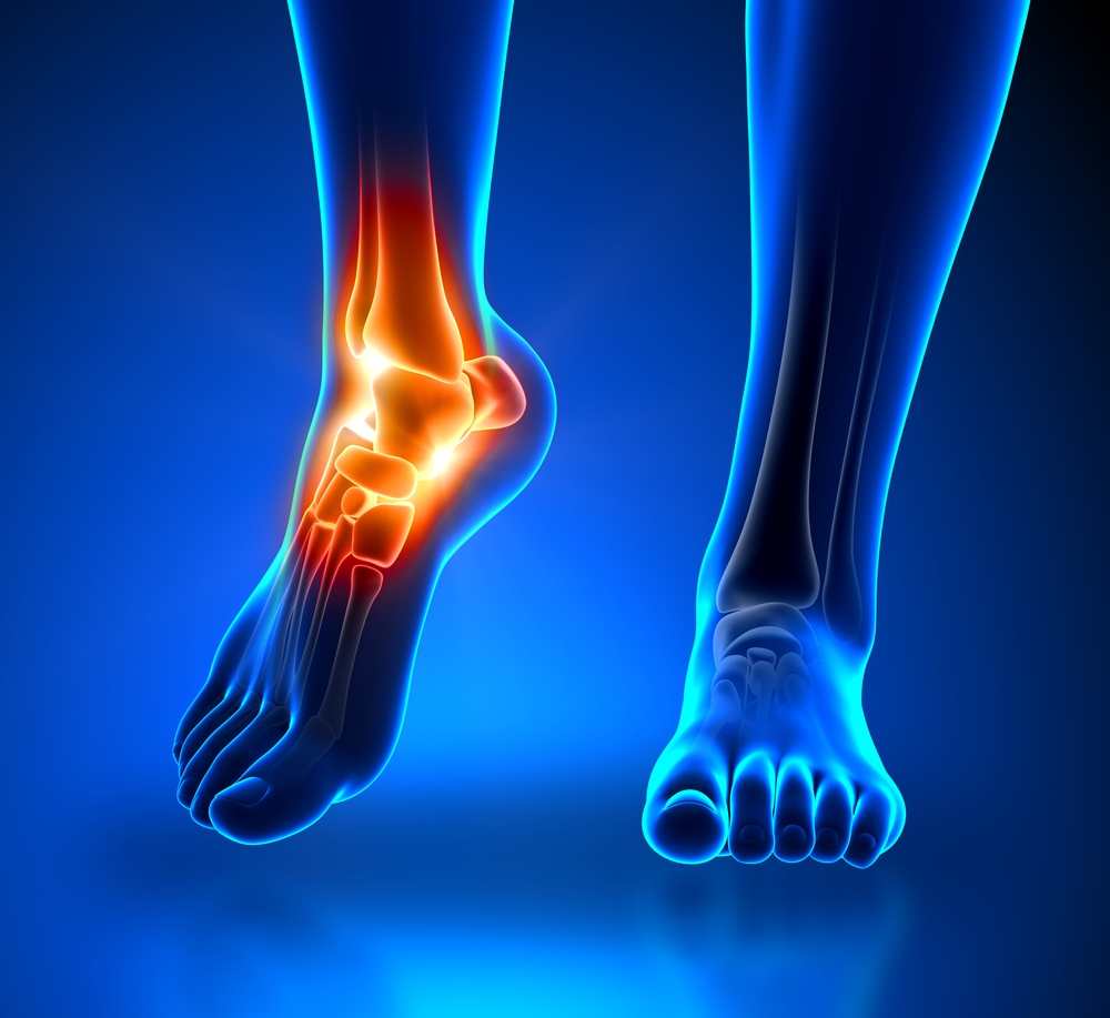 fájdalom a bokaízület tünetei és kezelése)
