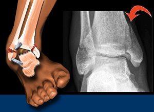 Melyek a csonttörés gyógyításának legfontosabb kérdései | Harmónia Centrum Blog