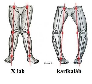 artrózisos kezelés térdpárnákkal fájdalom a csípőízületben, amikor megnyomják