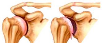 a vállízületek gyulladásának kezelése ízületi gyulladás a nagy lábujj