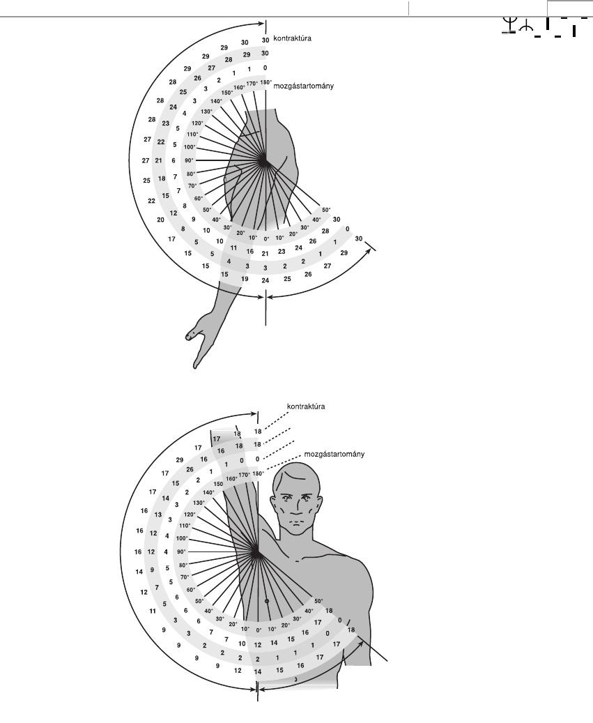 hogyan kezeljük az 1. fokozatú artrózist