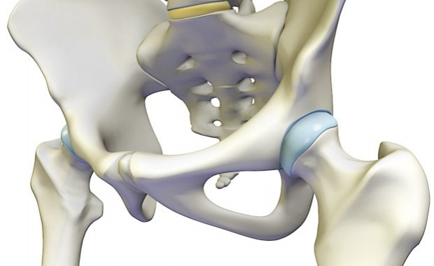 csípőfájdalom betegség