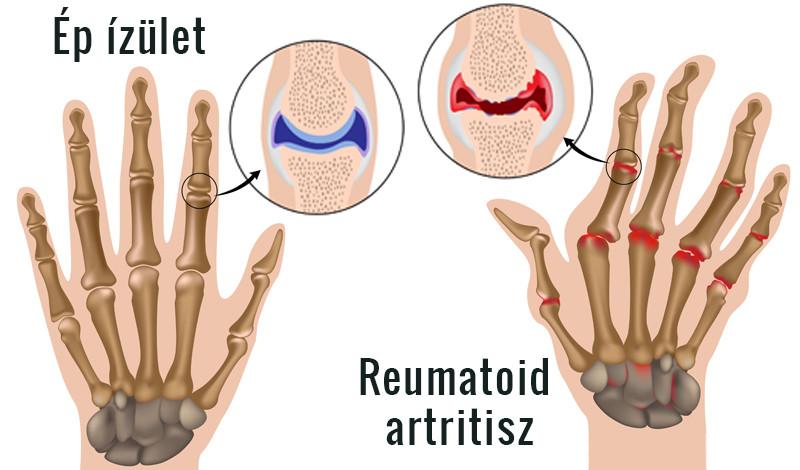 kéz a rheumatoid arthritis elhúzódó ízületi fájdalom