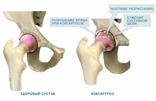 a csípőízület kétoldalú coxarthrosis-ja