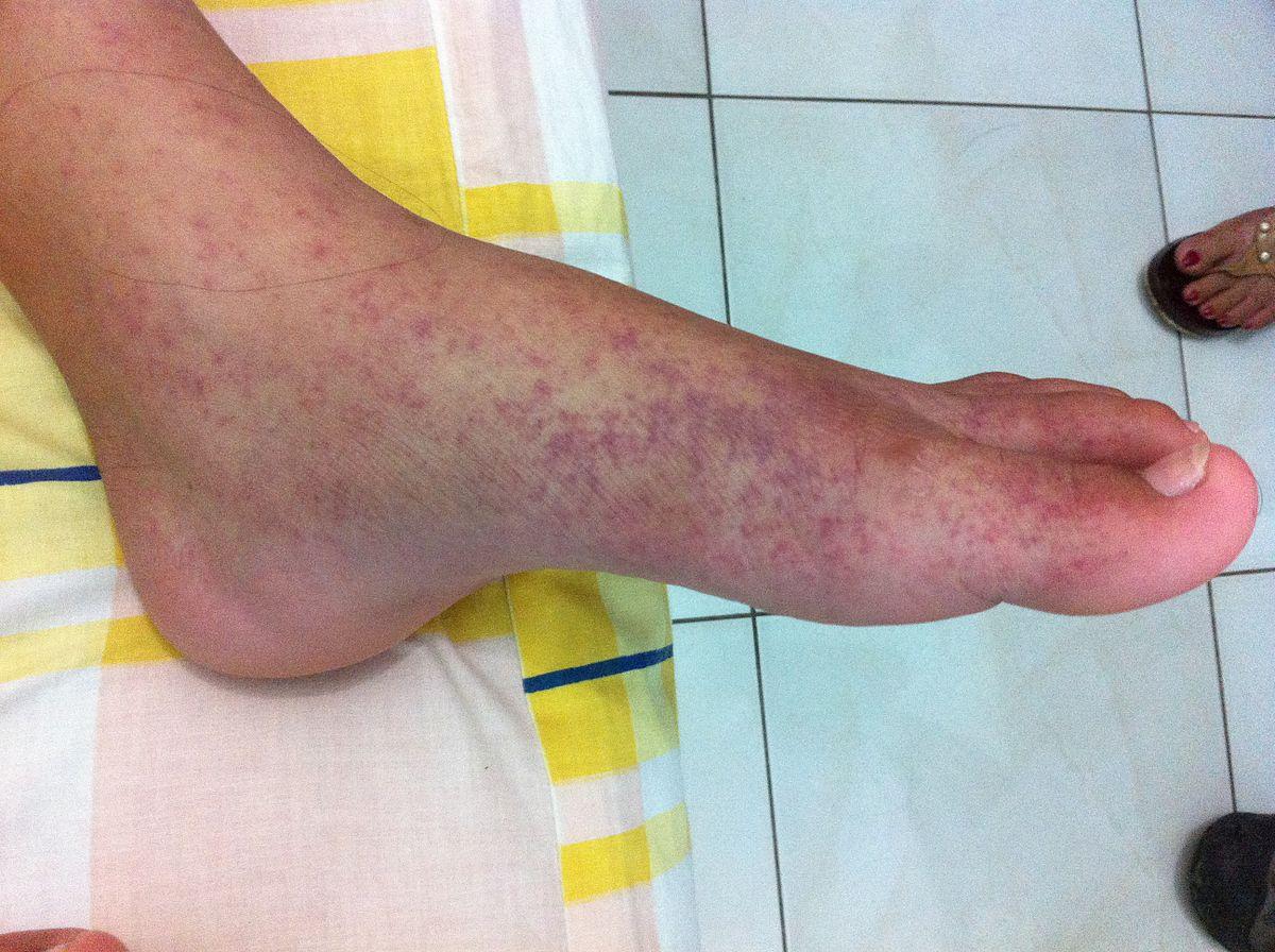 a lábak ízületeinek betegségei 70 év alatt
