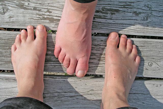 fájdalom, amikor a láb ízületében járunk)