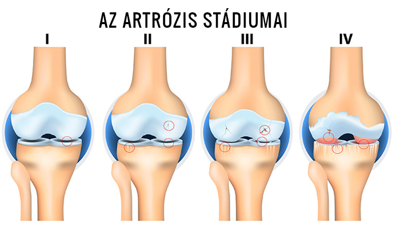 az ízületek artrózisának radiológiai stádiumai)